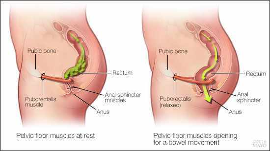 2 part image demonstrates the need for pelvic floor muscle relaxation in order to evacuate bowels