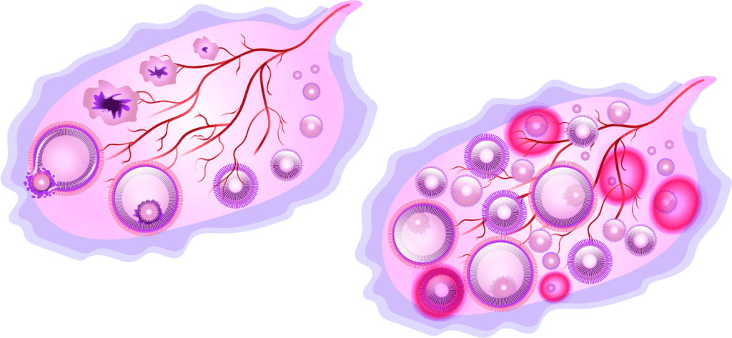 2 part image showing a healthy ovary on the left and an ovary full of cysts and red spots on right