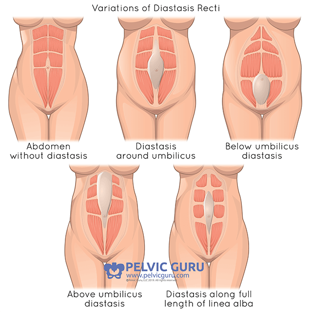 Medical diagram showing five different types of diastasis recti and the various effects on the body